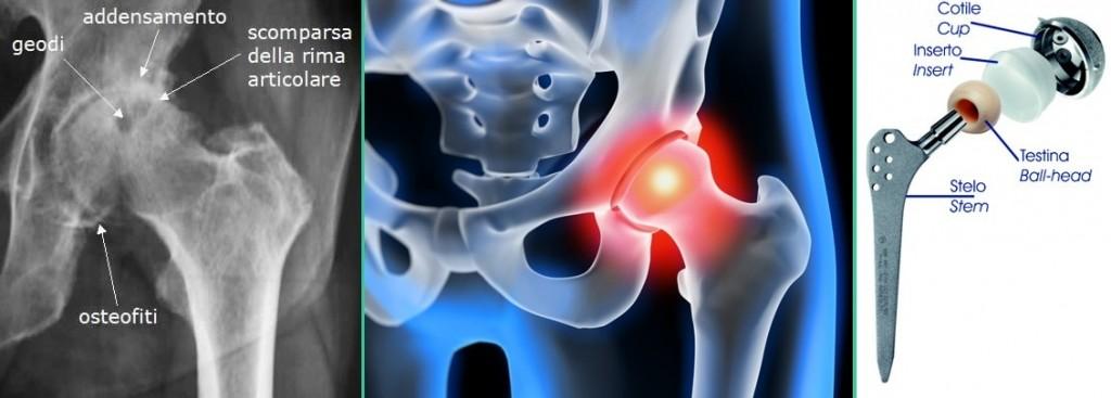 Artroprotesi  di anca